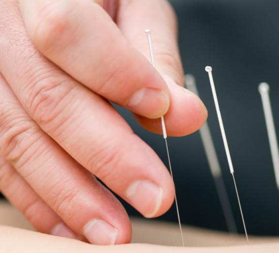 acupuntura-girona-portada-