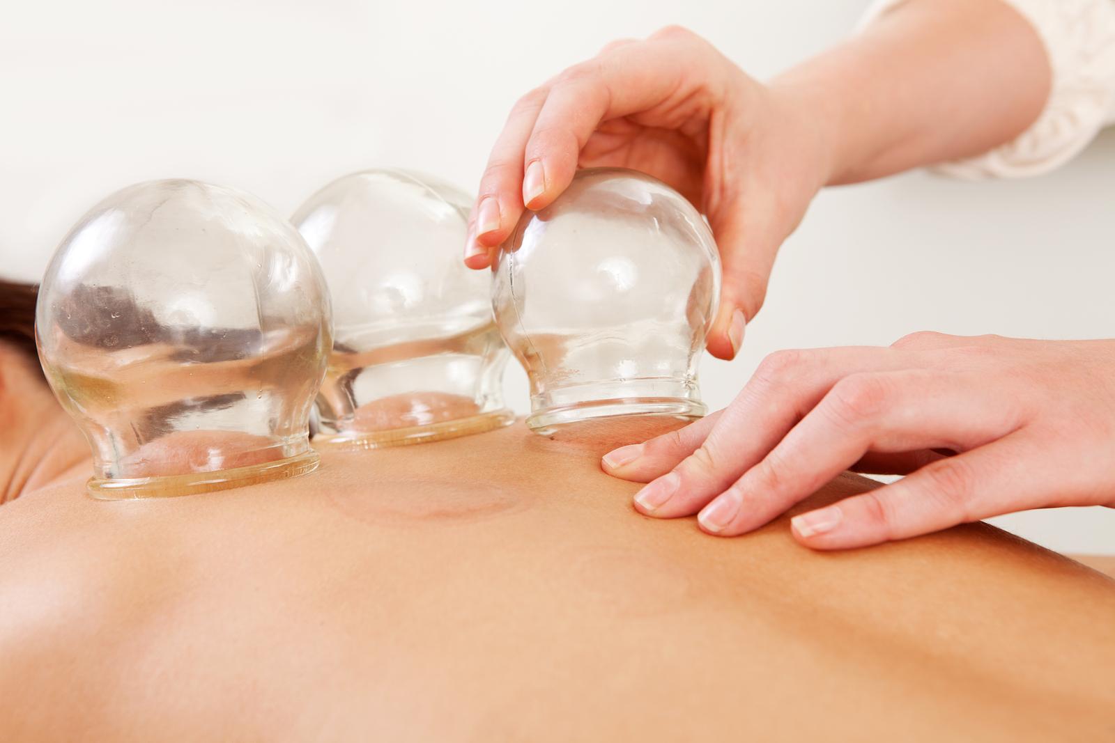 otros acupuntura